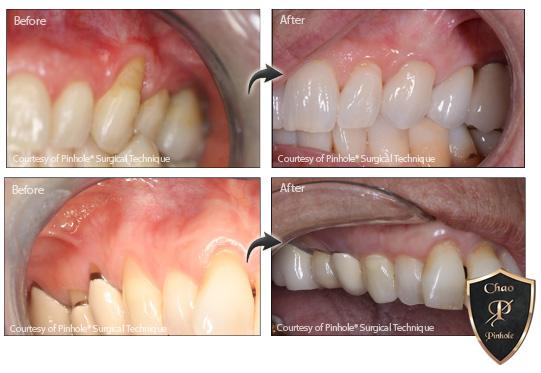 Video image,Dentist Los Angeles